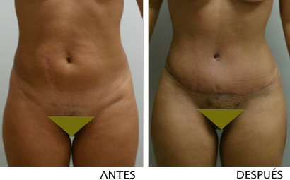 Abdominoplastia (antes y después)