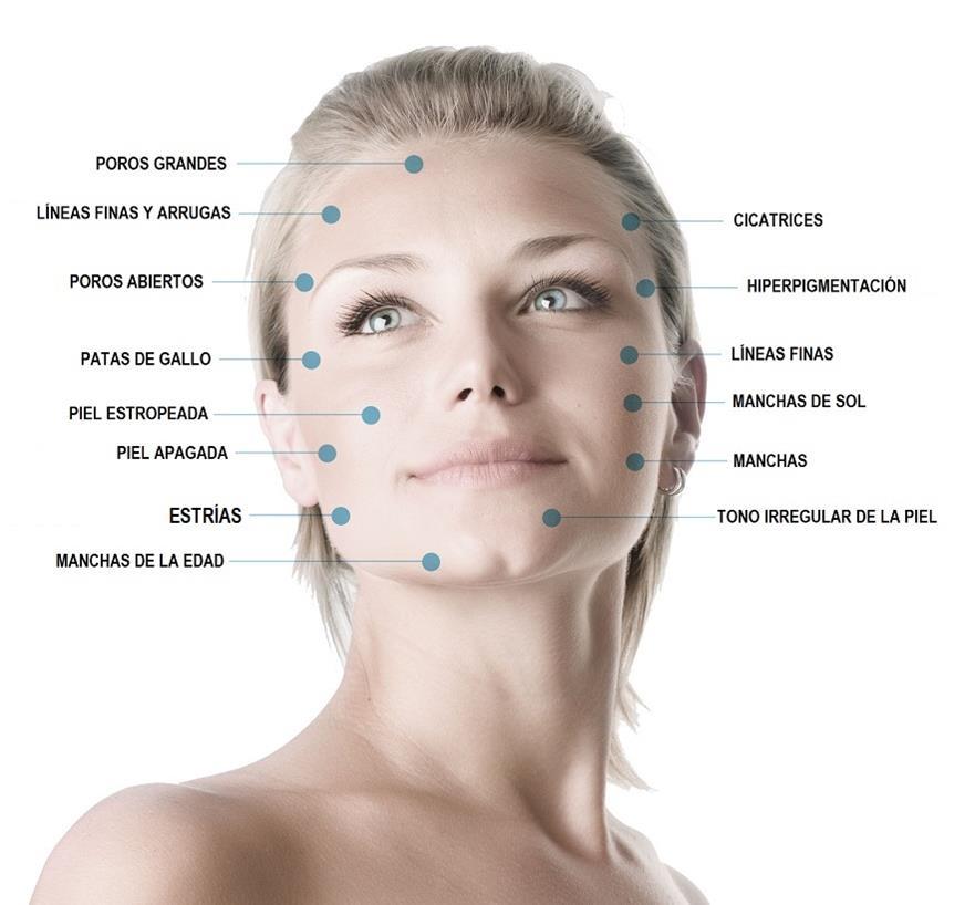 Microdermoabrasion facial