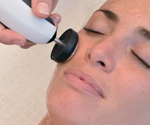 con que frecuencia se debe hacer la radiofrecuencia facial